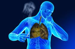 Вредные привычки как факторы для проявления бронхита