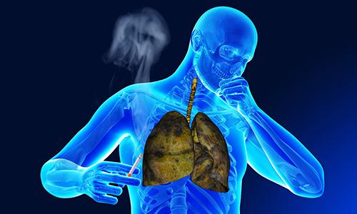 Легкие курильщика при бронхите