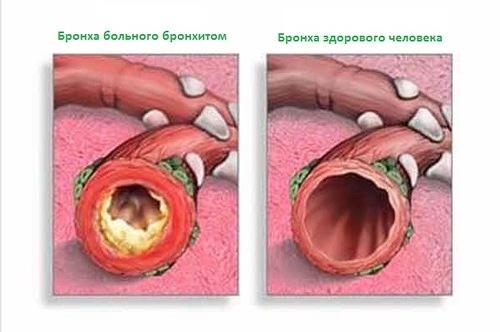 препараты уничтожающие паразитов в организме человека