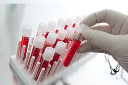 Проведение общего анализа крови при бронхите