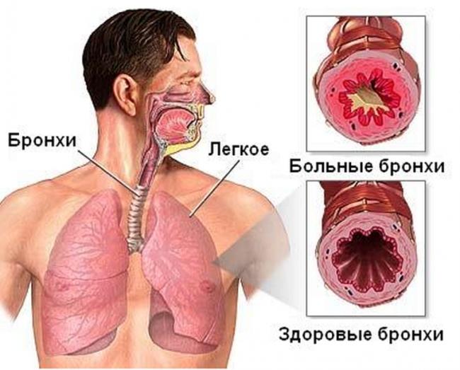 Болезни позвоночника лечение в спб