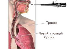 Эндоскопическая бронхоскопия для диагностики необструктивного хронического бронхита