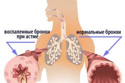 Бронхиальная астма - противопоказание к наложению горчичников