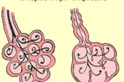 Здоровые легкие и при легочной эмфиземе