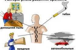 Факторы риска развития бронхита