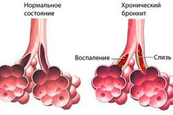 Осложнения после бронхита - хронический бронхит