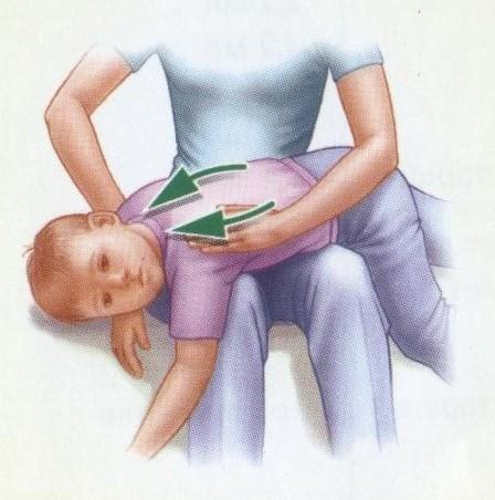 Массаж для детей чтобы вывести мокроту