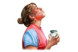 полоскание горла растворами