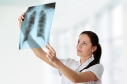 Рентгенологическое исследование легких при бронхите