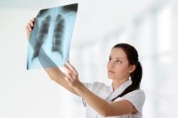 Рентгенограмма при бронхите