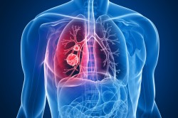 Воспаление легких - при осложнении бронхита